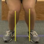 Anterior Cruciate Ligament injury prevention – Part 2