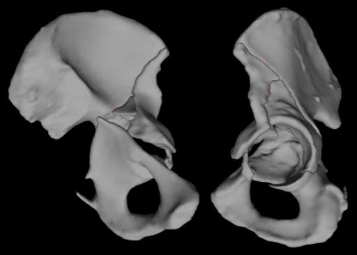 3D acetabulum CT