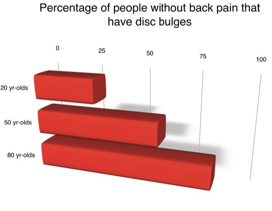 Disc Bulges in people with no back pain