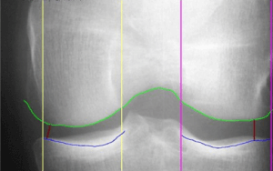 Normal knee radiograph xray medial and lateral compartments